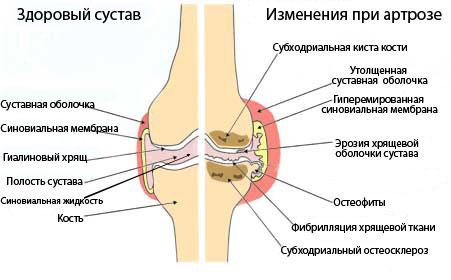 NSP для суставов в Молдове купить